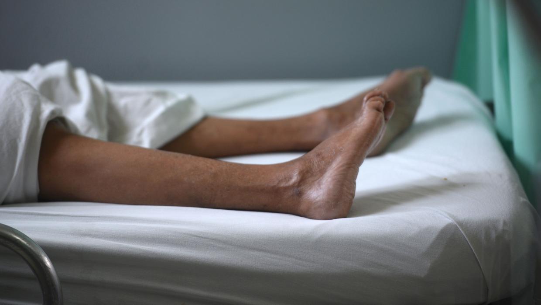 Esperan más casos de Guillain-Barré por zika en México